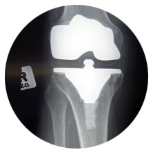 x-ray of joint